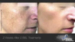 Before and after image of a face treated with Sciton's BBL for sun damage