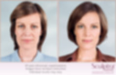 Before and after image of a woman's face before and after treatments with Sculptra Aesthetic