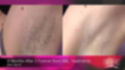 Before and after image of a woman's armpit treated with Sciton's BBL for hair removal