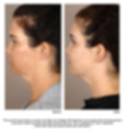 Before and after image of a woman's face treated with Collagen P.I.N. Microneedling for pigment