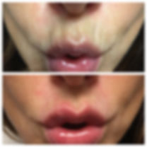 lips before and after Restylane dermal filler injections