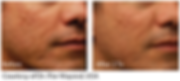 Before and after photo of a man's cheek acne scars treated with radiofreqency microneedling.