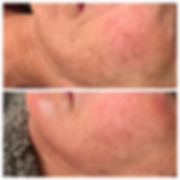 Before and after image of cheek wrinkles after treatment with microneedling at Visage MedSpa in Ohio