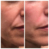 Before and after treatment to Nasolabial folds with dermal filler