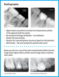 Radiography_FAQ_graphic_320da31b-7c70-43