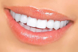 красивые_зубы.jpg