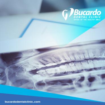 Bucardo Dental Clinic - Campaña en Facebook Ads