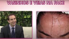 Vasinhos e veias no rosto: Conheça os tratamentos para eliminá-los