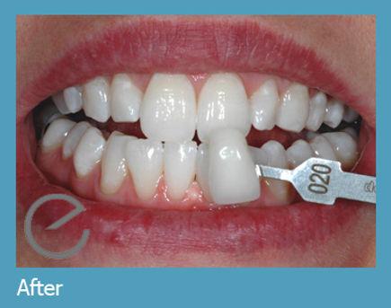 Teeth Whitening London