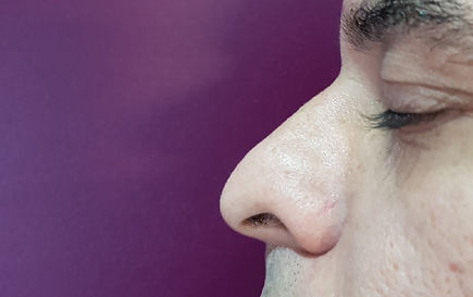 Nose Reshaping in London
