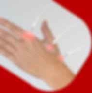 Laserpuntura.jpg