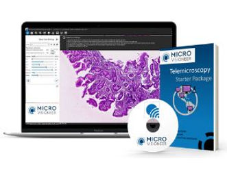 telemicroscopy digital pathology
