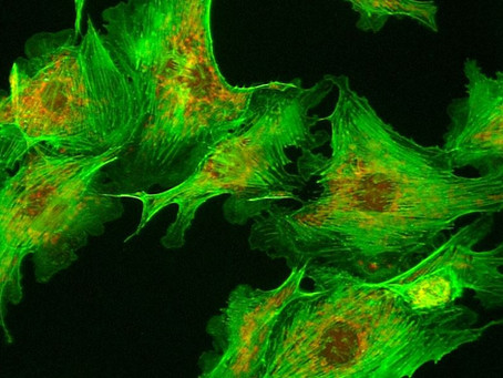 Microvisioneer introduces new Fluorescence edition