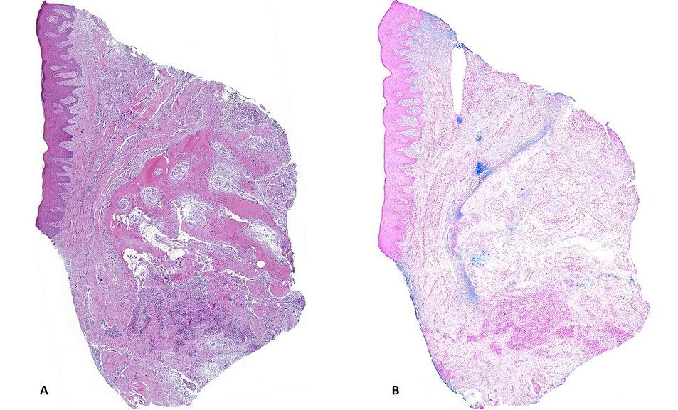Panoramic images periodontitis light microscopy.JPG