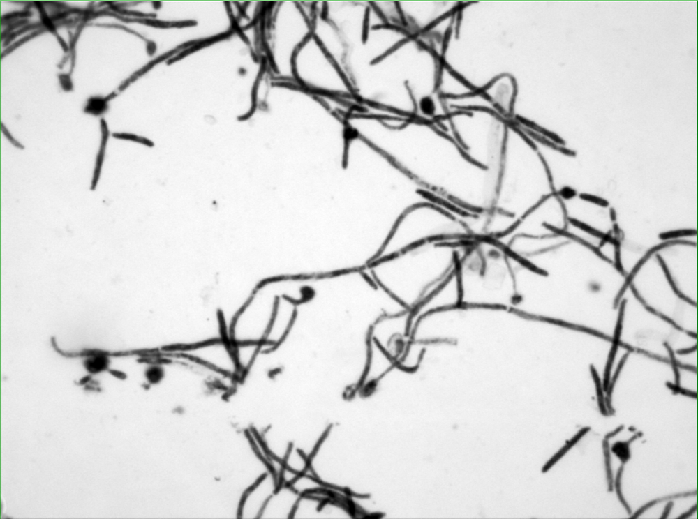 light microscopy of hyphae formation of C. albicans