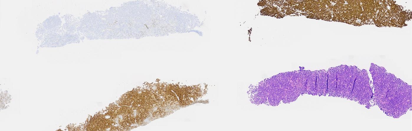 Edu Image Chandra Freeze Var 8_white__pn