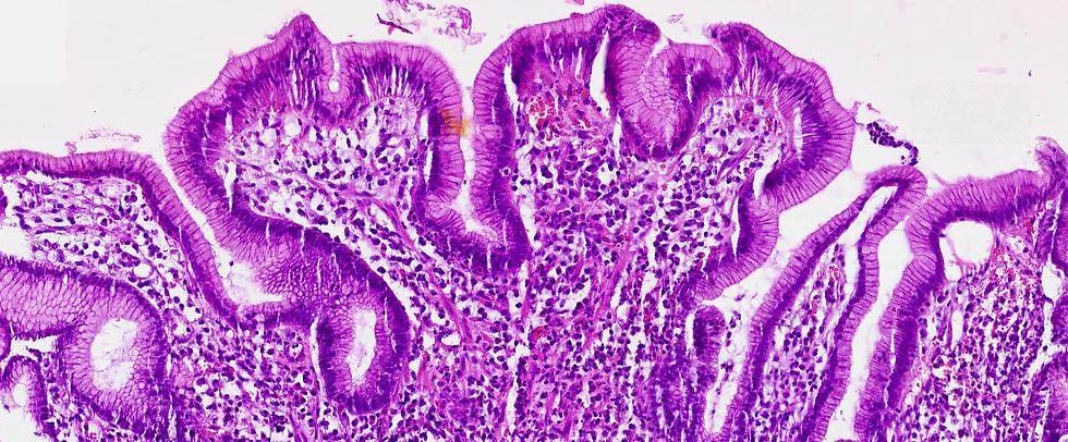 Affordable high-volume scanning digital microscopy