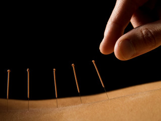 Research Supporting the Treatment of Low Back Pain with Acupuncture