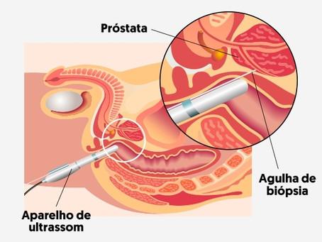 Biópsia de Próstata - Como é feita ? Mitos e Verdades.