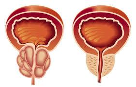 Próstata grande ? Quais os sintomas ?