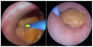 Cirurgia laser para cálculos renais - Como é isso ?