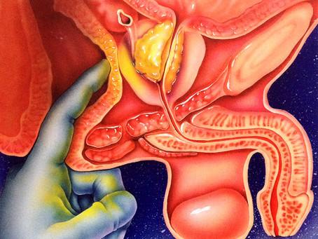 Câncer de Próstata - Prevenção e Diagnóstico