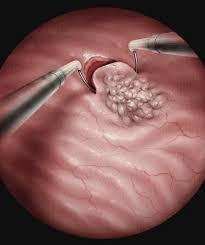 Tumor de Bexiga - O que é RTU Bexiga ?