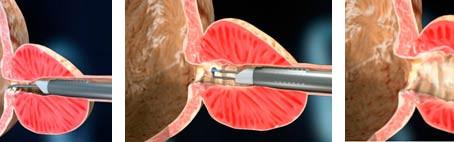 Tratamento da Hiperplasia da Próstata - RTU Próstata