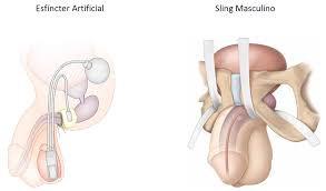 Tratamento da Incontinência Urinária pós Tratamento do Câncer de Próstata
