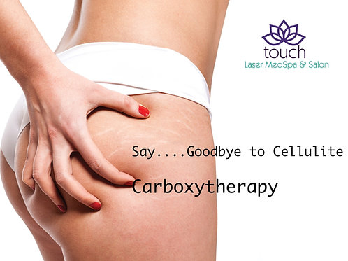 Carboxytherapy