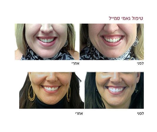 טיפול גאמי סמייל לפני ואחרי