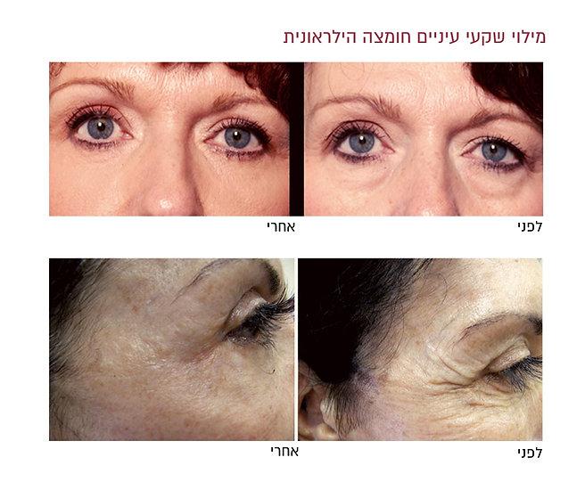 מילוי שקעי עיניים לפני ואחרי