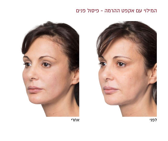 פיסול פנים לפני ואחרי