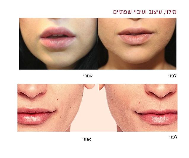 לפני ואחרי עיצוב ועיבוי שפתיים
