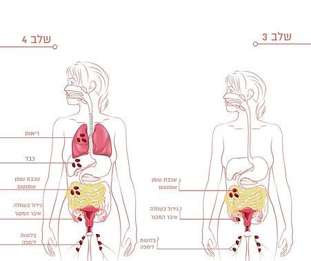 סרטן השחלה בשלבים מתקדמים מאוד