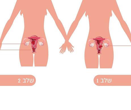 שלב 1 סרטן רירית הרחם