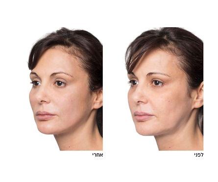 לפני ואחרי טיפול מתיחת פנים ללא ניתוח