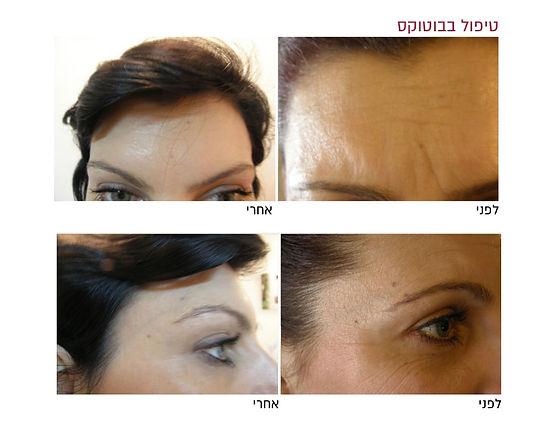 טיפול בבוטוקס לפני ואחרי