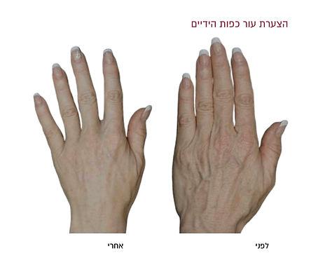 הצערת עור כפות הידיים