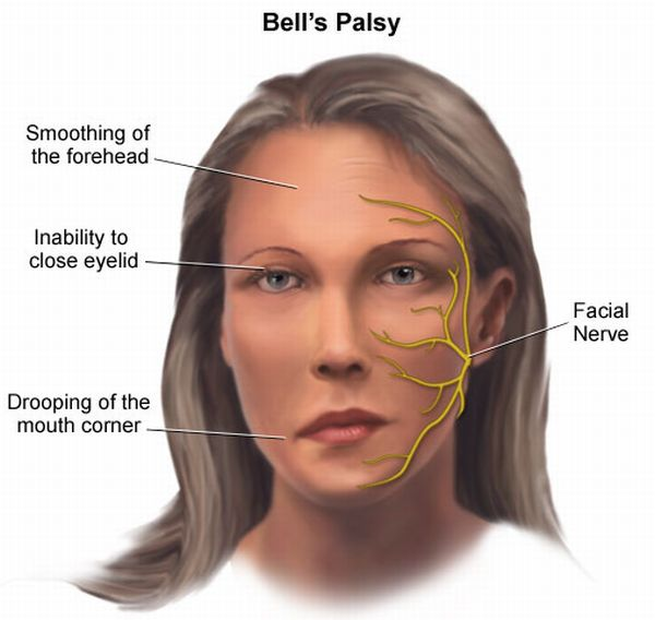 bellspalsy_facial-paralysis