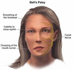 bellspalsy_facial-paralysis