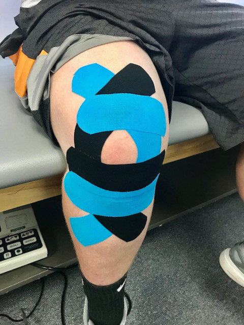 Taping for pain in the front of the knee