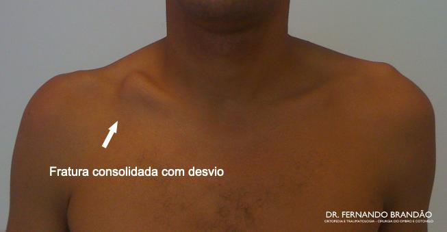 Imagem demonstra aspecto do ombro com fratura da clavícula consolidada com desvio ósseo, consolidação viciosa