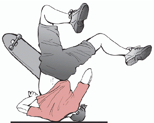 O mecanismo mais frequente na fratura da clavícula é a queda com trauma dieto do ombro contra o solo.