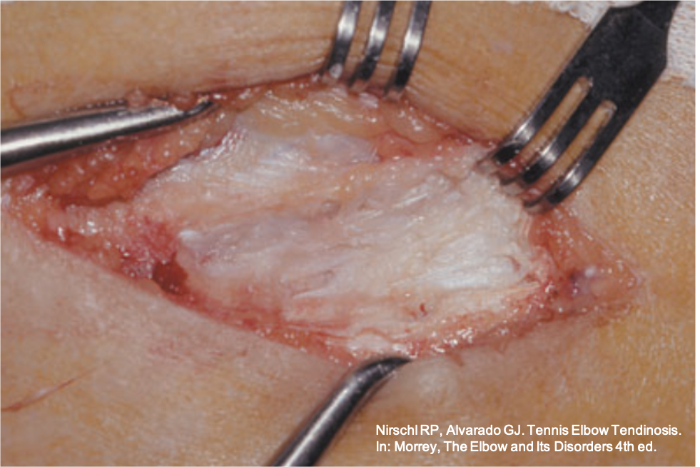 """Tratamento cirúrgico para epicondilite lateral: a porção degenerada do tendão extensor (""""tendinose com hiperplasia angiofibroblástica"""") é retirada."""
