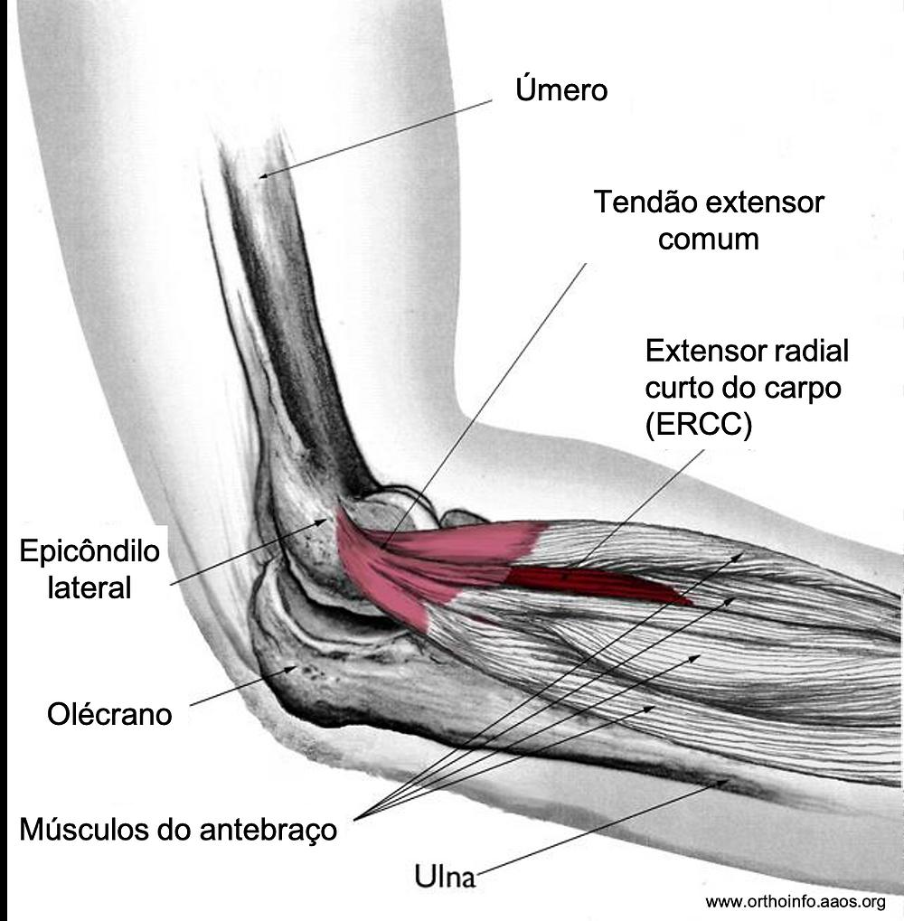 """Anatomia da face lateral do cotovelo - epicondilite lateral (""""tennis elbow"""")"""