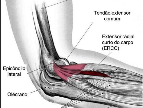 """Epicondilite lateral (""""Tennis elbow""""): a principal causa de dor no cotovelo"""