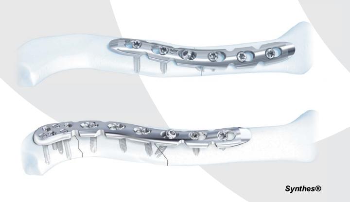 Tipos de placa pré-moldadas para a fixação de fratura da clavícula.