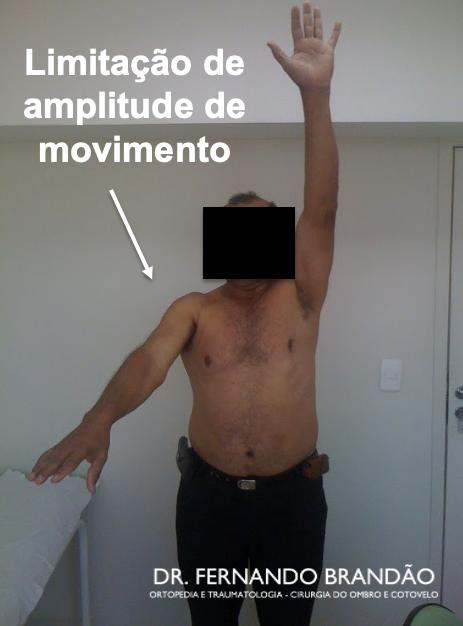 Limitação de movimento no ombro congelado - capsulite adesiva