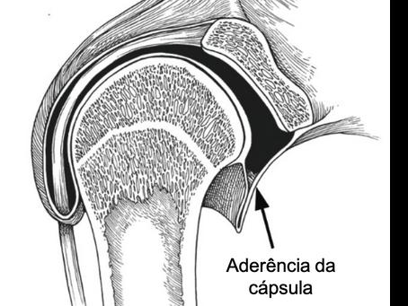 Ombro congelado (Capsulite adesiva): diagnóstico e tratamento